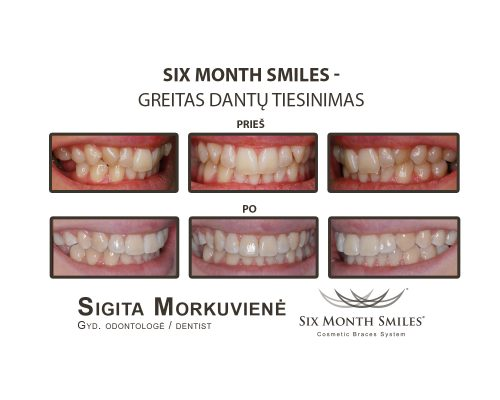 Six Month Smiles_31 (1)